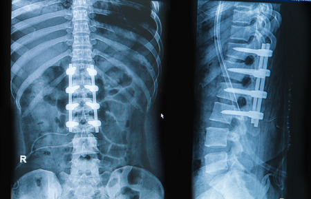 x-ray image of back pain show spinal column with implant, screw placement and fusion Stockfoto