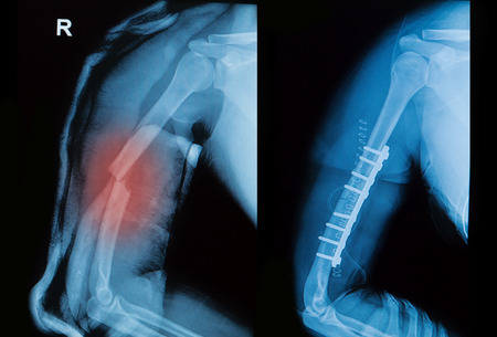 bone fracture: x-ray image of borken arm bone show pre- post operation (Anatomy of fracture humerus )