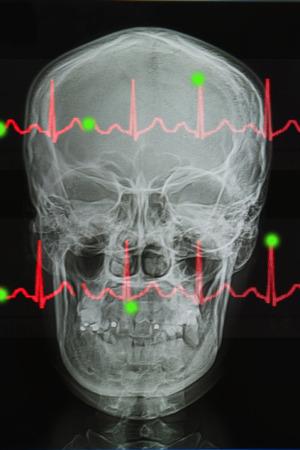 lifeline: Skull x-rays image and Lifeline of electrocardiogram