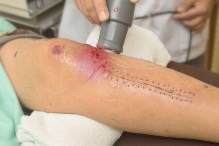 Physiotherapist treats knee surgery wound photo