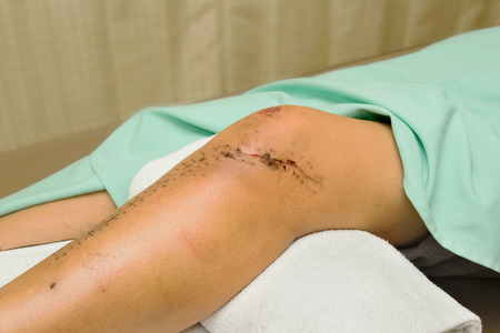 kneecap: Stitched wound after a surgical knee and leg Stock Photo