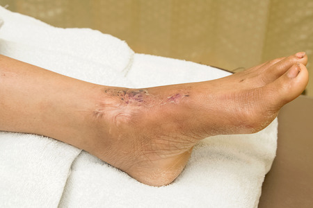 suture: ankle wound suture