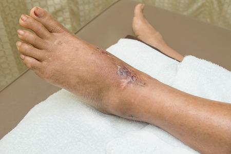 herida: tobillo sutura de la herida Foto de archivo