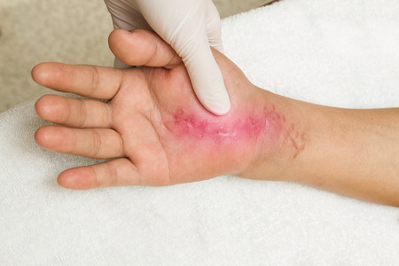 scar: Scar wound on hand. hand injury 6 weeks after surgery