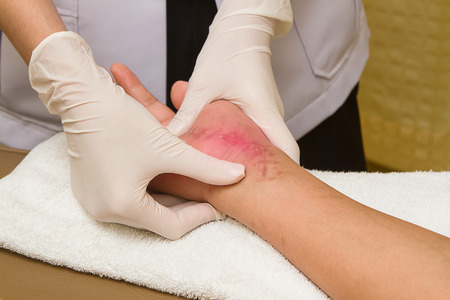 scar: Patient getting a therapy massage on scar,Hand injury 6 weeks after surgery