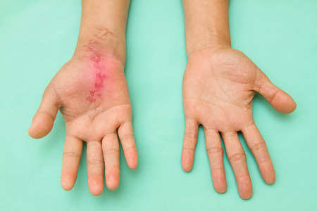 incision: Scar wound on swollen and inflamed hand after accident