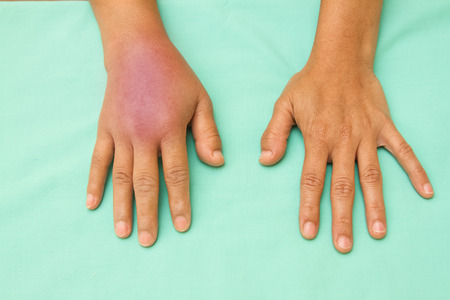 hand injury: Female hands one swollen and inflamed after accident