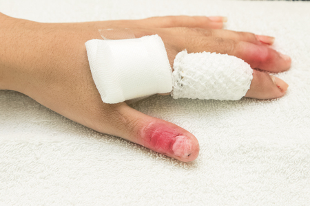 gauze: injured finger wrapped in a gauze bandage after surgery
