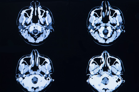 computerized: images from a computerized tomography of the brain and skull