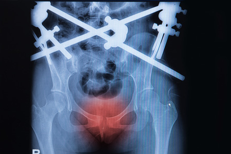 pubic: x-ray image of fracture pubic symphysis with external fixation