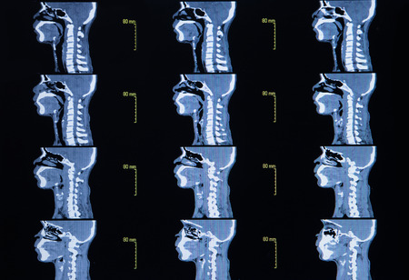 computerized: Series of images from a computerized tomography of neck cervical bone Stock Photo