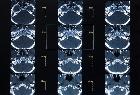transverse colon: CT Scan Whole Abdomen with contrast Stock Photo