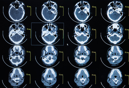 computerized: Series of images from a computerized tomography of the brain