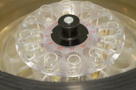 centrifuge: Centrifuge blood and urine testing