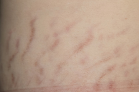Close up stretch marks on Asian woman belly