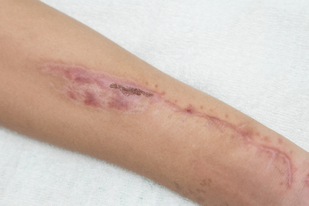 flesh surgery: Old scar wound in the forearm