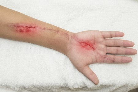 laceration: imflamation wound in the forearn