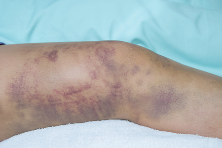 hematoma: Closeup on a Bruise on wounded woman leg skin