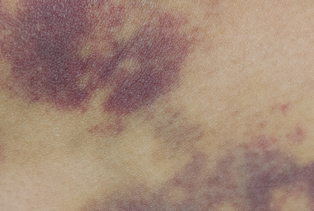 contusion: Closeup on a Bruise on wounded woman leg skin