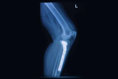 tibia: x-ray of fracture tibia(leg bone). tibia bone with internal fixed by plate&screw