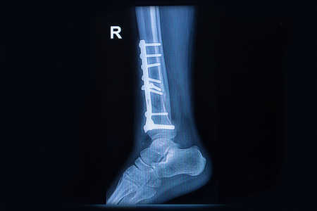 De rayos X de cine espectáculo de tobillo fractura de tibia distal Foto de archivo