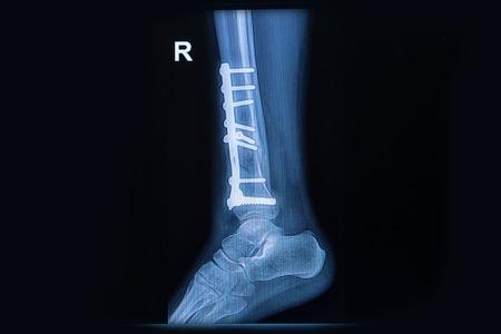 distal: De rayos X de cine espectáculo de tobillo fractura de tibia distal Foto de archivo