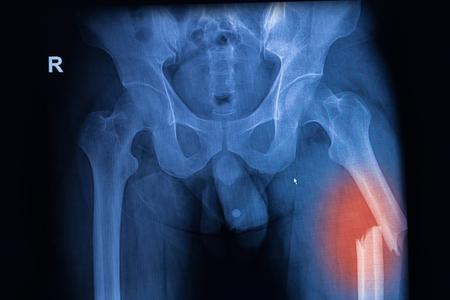 osamenta: imagen de rayos X tanto de la cadera que muestra la fractura de fémur en el lado izquierdo