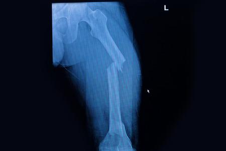 emergency case: Fractured Femur, Broken leg x-rays image