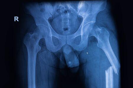 fractura: imagen de rayos X tanto de la cadera que muestra la fractura de fémur en el lado izquierdo