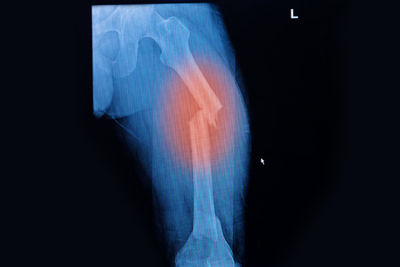 invalidity: Fractured Femur, Broken leg x-rays image