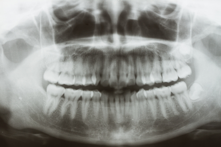 personne malade: Panoramique dentaire X-Ray