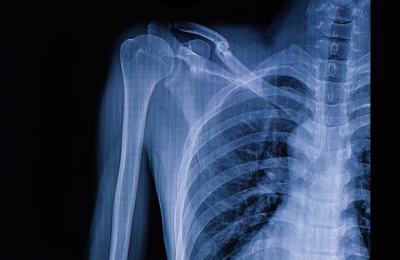extremity: X-ray image of left clavicle fracture