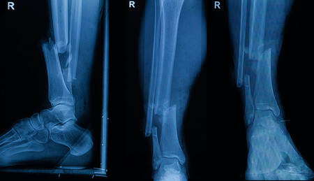 anatomy leg: Collection of human x-rays  showing fracture of right leg ( fracture both bones ) Stock Photo