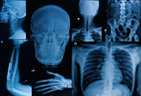 broken back: Collection of  X-ray , Multiple part of adult  show fracture bone and  disease