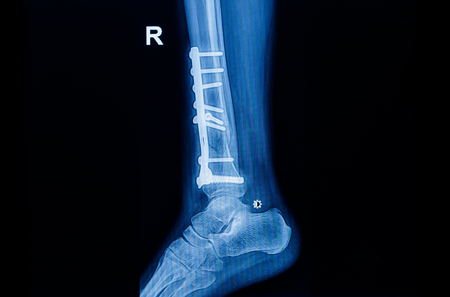 Fracture Ankle Fibula Bone ( Leg Bone ) X-ray Of Ankle With Plate ...
