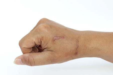soreness: Hand with scar isolated on white. This has clipping path.
