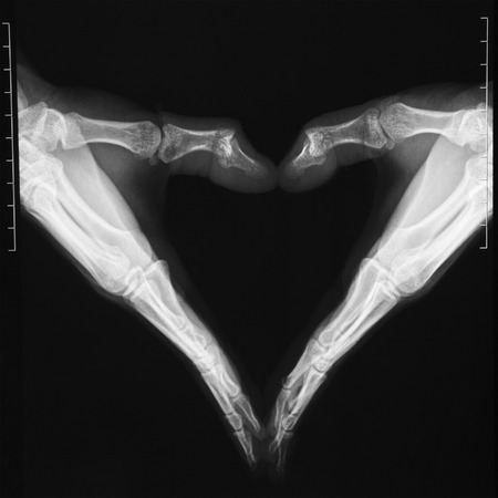radiological: X-ray hands in heart shape Stock Photo