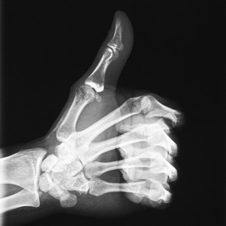 radiological: X-ray of thumb up Stock Photo