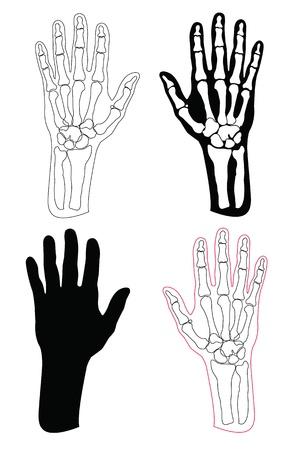 broken wrist: Colecci�n de las manos y huesos humanos