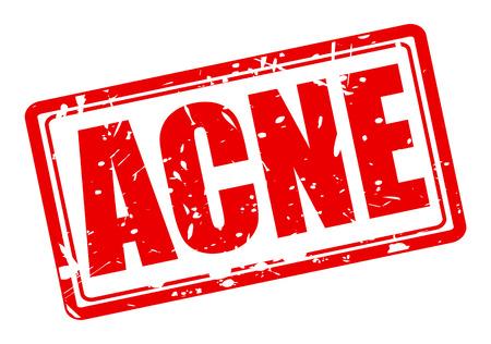 pubertad: ACNE texto del sello rojo sobre blanco
