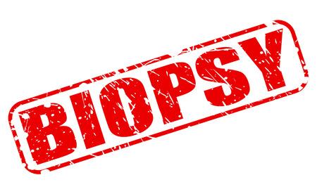 biopsia: BIOPSIA texto del sello rojo sobre blanco