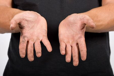 close up of an Caucasian worker with dirty hands, Stock Photo - 824339