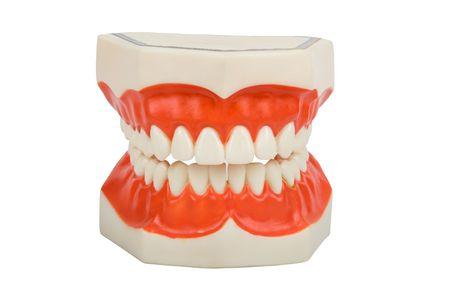 molares: pr�tesis de pl�stico, utilizado por los dentistas para mostrarle c�mo cepillarse los dientes, cavidad ejemplo en la parte inferior derecha, aislada en blanco  Foto de archivo