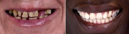 yellow teeth: Dentistry smile, Caucasian and African American woman teeth compare. Miracle teeth makeover before and after, teeth whitening, skin...? Nothing is perfect.