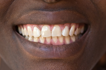 beenderige: Sample teeth, well some of us are just lucky and do not need a second mortgage to fix their teeth.