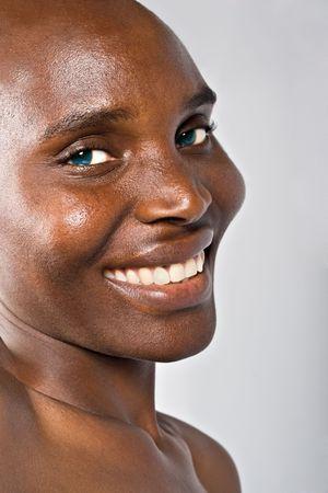 無毛の美しいアフリカ人女性、化学療法後のがん患者