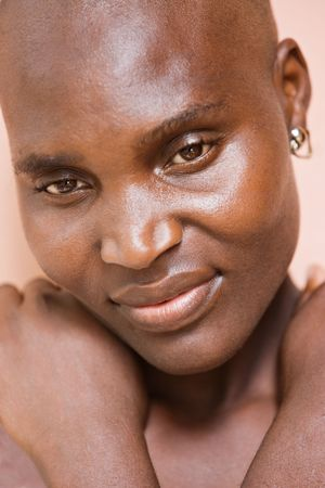 bald girl: Village African woman no makeup, natural beauty, cancer patient.