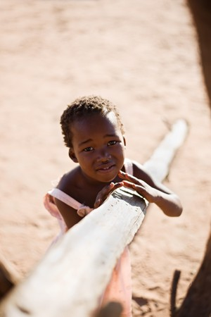 african girl living in a very poor community in a village near Kalahari desert Stock Photo