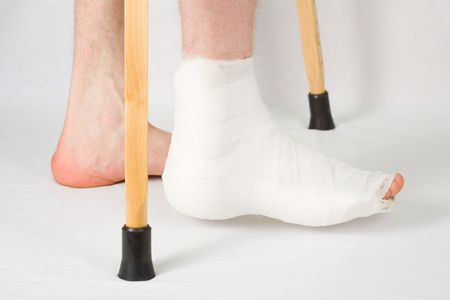 The person with plaster on a foot stands on a floor Stock Photo - 3801564