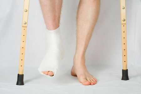 plaster foot: The person with plaster on a foot stands on a floor